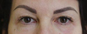 Intervento estetico per la zona orbicolare per attenuare la lassità degli occhi e della fronte.