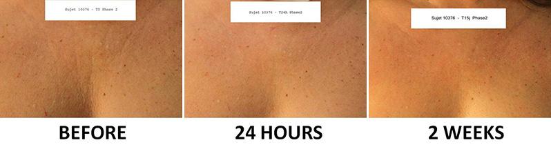 Effetti dei dispositivi per rughe decolleté e lifting della pelle del corpo