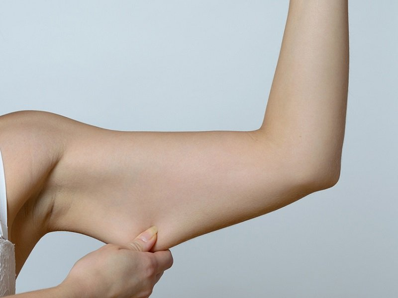Ali di gabbiano: lassità braccia addio