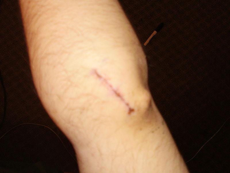 Cicatrici: rimedi per guarirle e attenuarle