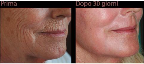 Peeling viso chimico al fenolo, da effettuare con la assistenza di un buon medico estetico o di un chirurgo plastico.