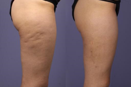 Carbossiterapia come rimedio alla cellulite