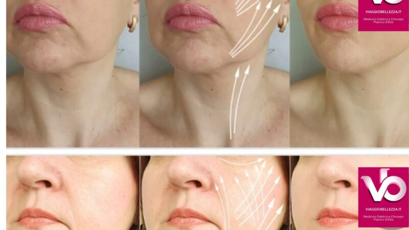 LIFTING cervico facciale
