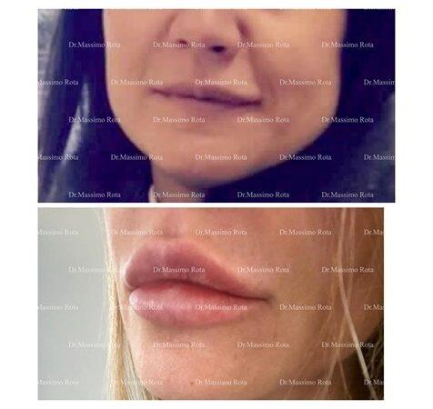 Labbra  Che Passione  :  Lip Fencing Foil Technique