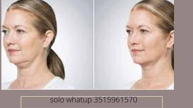 desoface elimina il grasso dal tuo viso